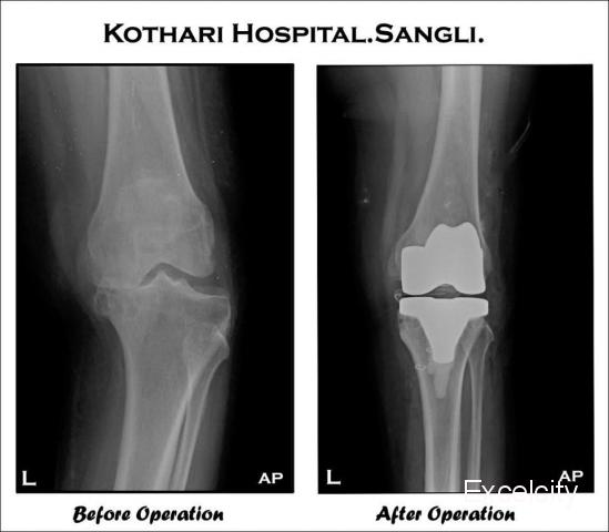 Kothari Accident And Orthopedic Hospital